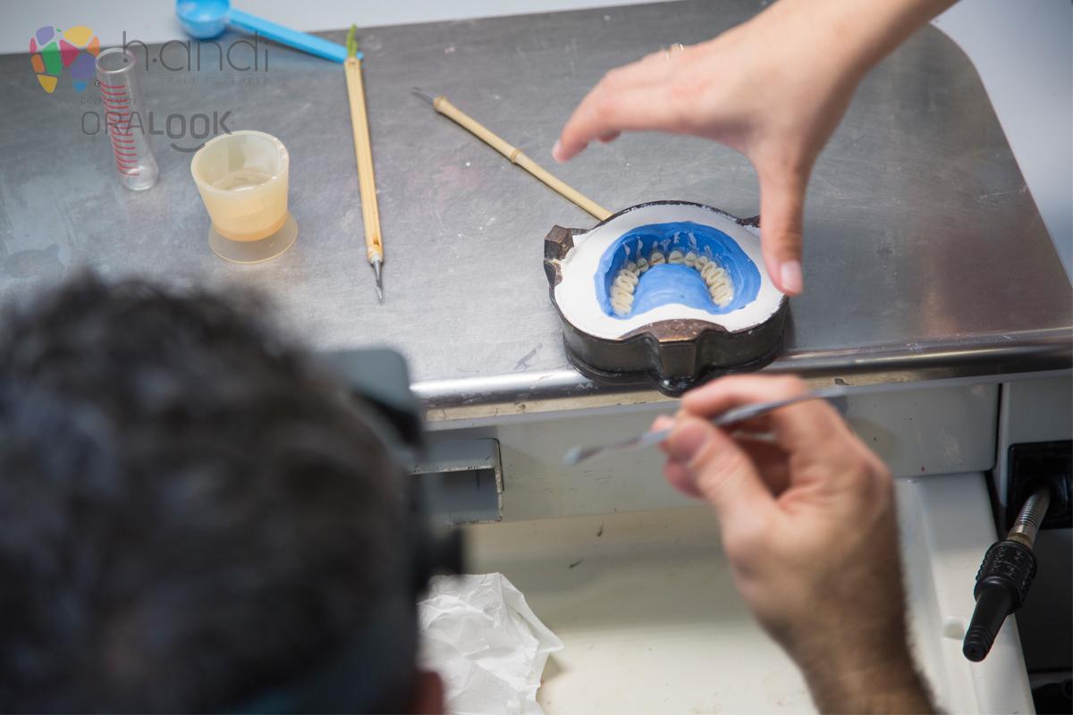 Fabricação de Prótese completa caracterizada com Lucitone
