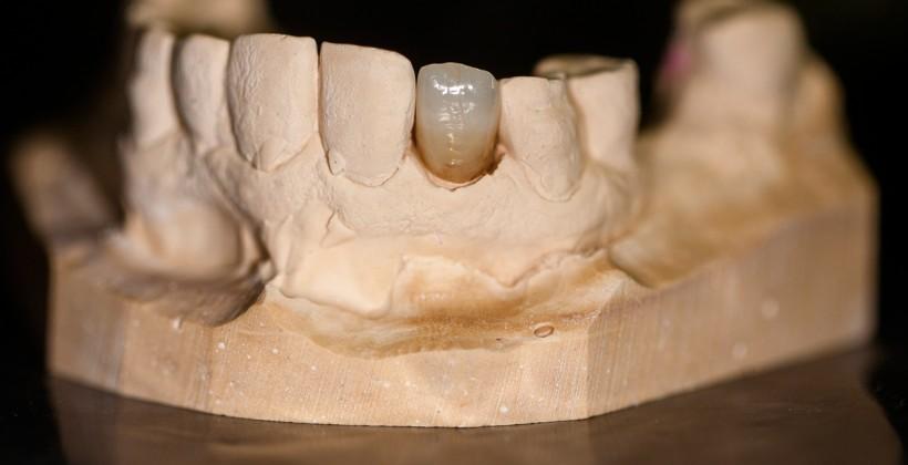 Coroa LiSi  no dente 12