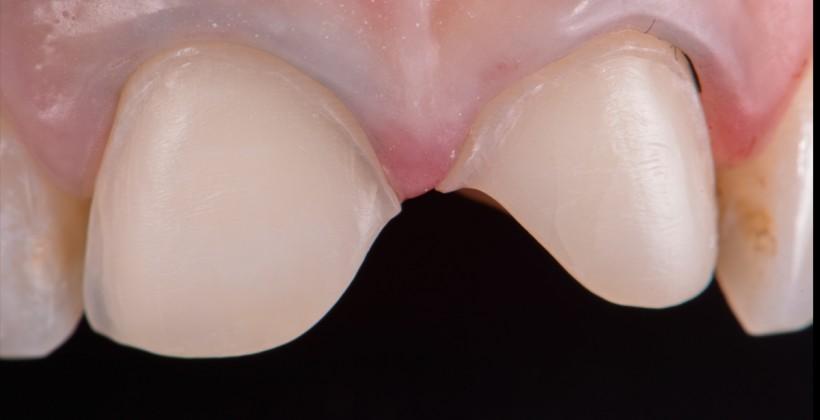 Facetas Feldspáticas dos dentes 11 e 21