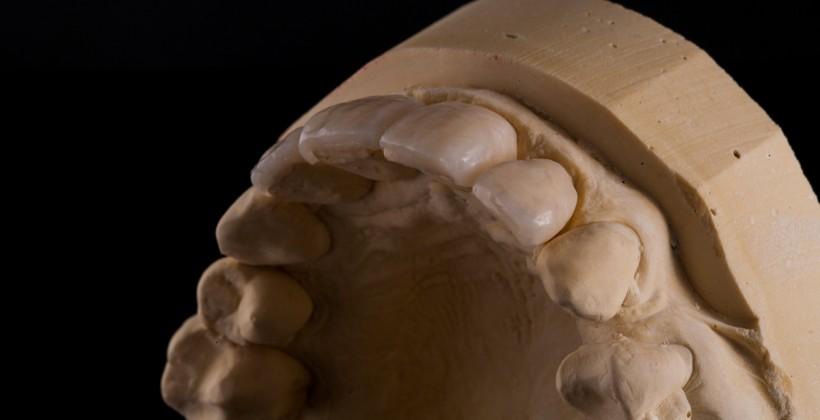Facetas em compósito Dentsply Radica dos dentes 12-11-21-22
