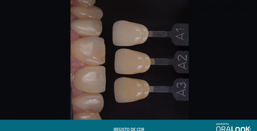 Coroas em zircónia sobre implantes