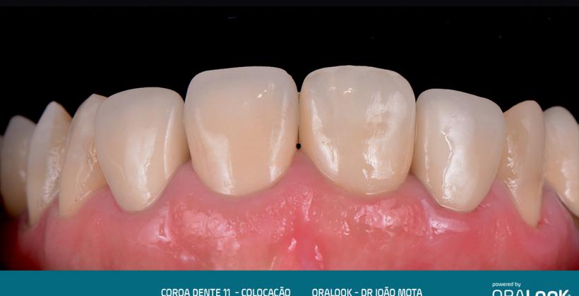 Coroa em Zircónia sobre dente