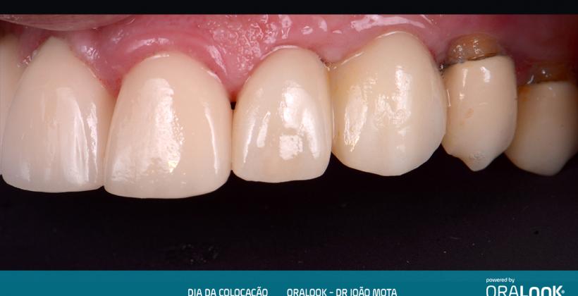 Coroa em Zircónia sobre implante